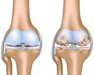 térd artrózis, térdprotézis előtt